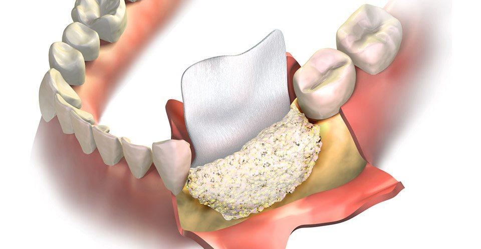 Bone Grafting and Sinus Lifts Procedure Image