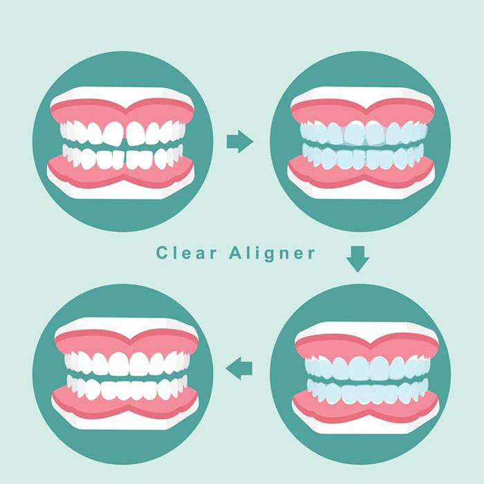 Clear aligner progression, TN