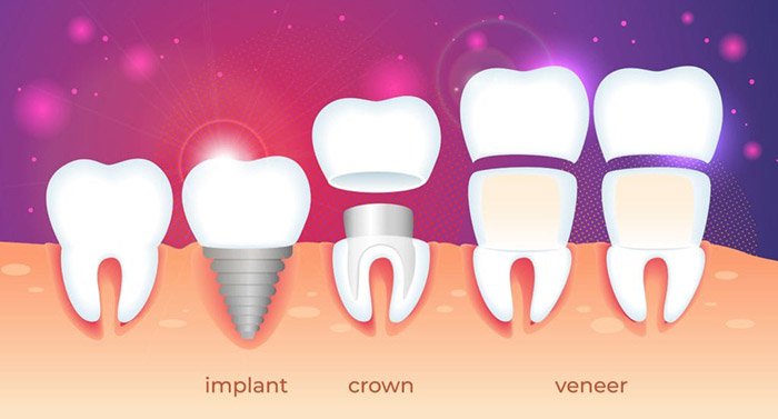 Dental implant, crown, and veneers show next to each other for comparison, TN