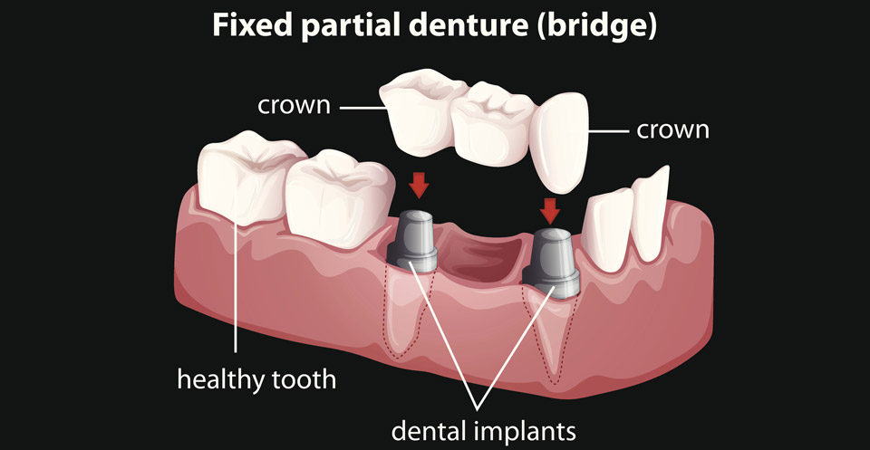 Fixed Hybrid Overdentures Procedure
