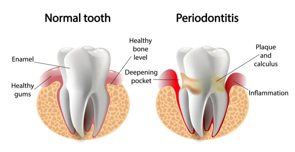 Gum Disease Procedure