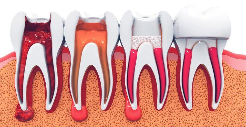 Root Canal Therapy Procedure