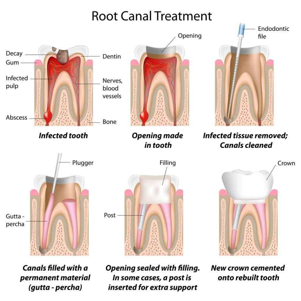 Root Canal Therapy Image