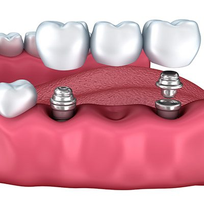 Reasons to Get Dental Implants, TN