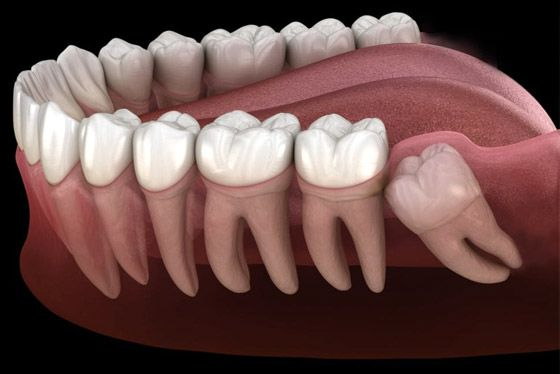 Tooth & Wisdom Removal Image