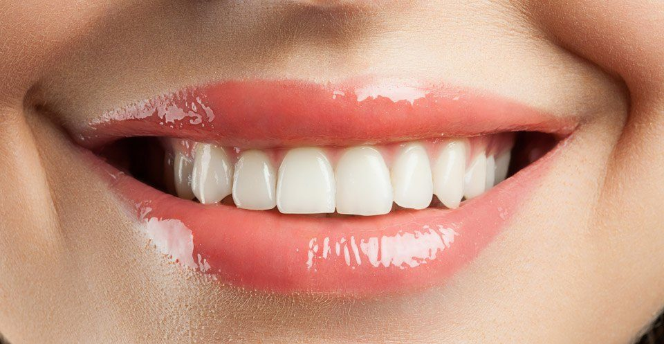 Trial Smile and Cosmetic Bonding Procedure